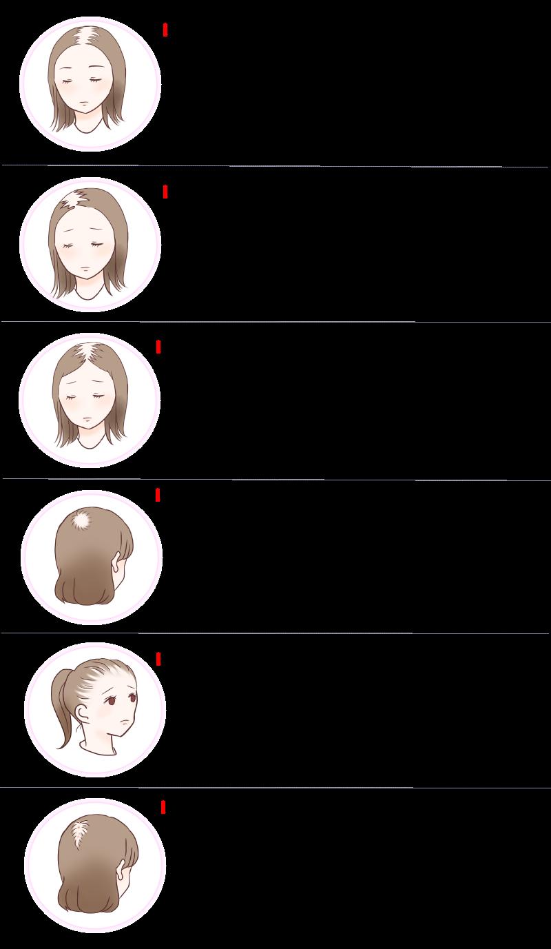 福岡市・糸島市薄毛発毛サロン憲女性型脱毛症のタイプ表