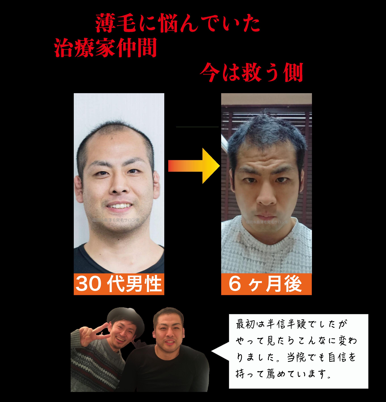 福岡糸島発毛サロン憲女40代